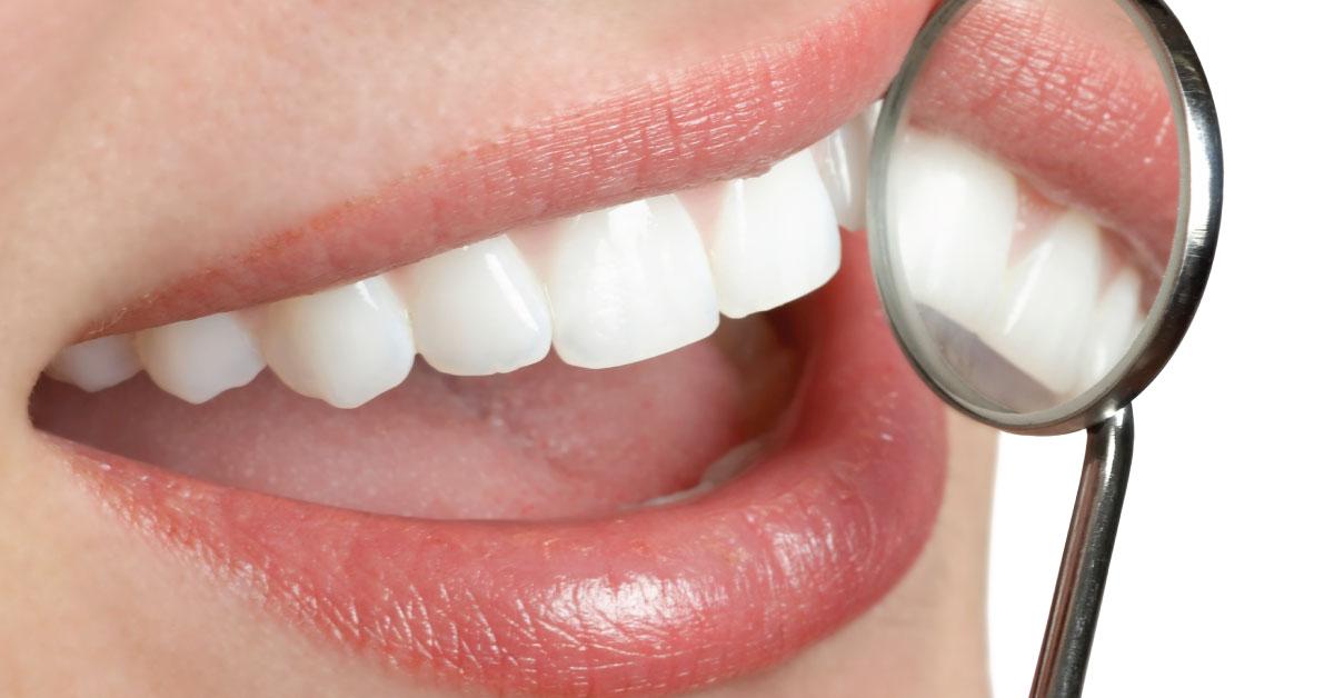 professional-teeth-whitening