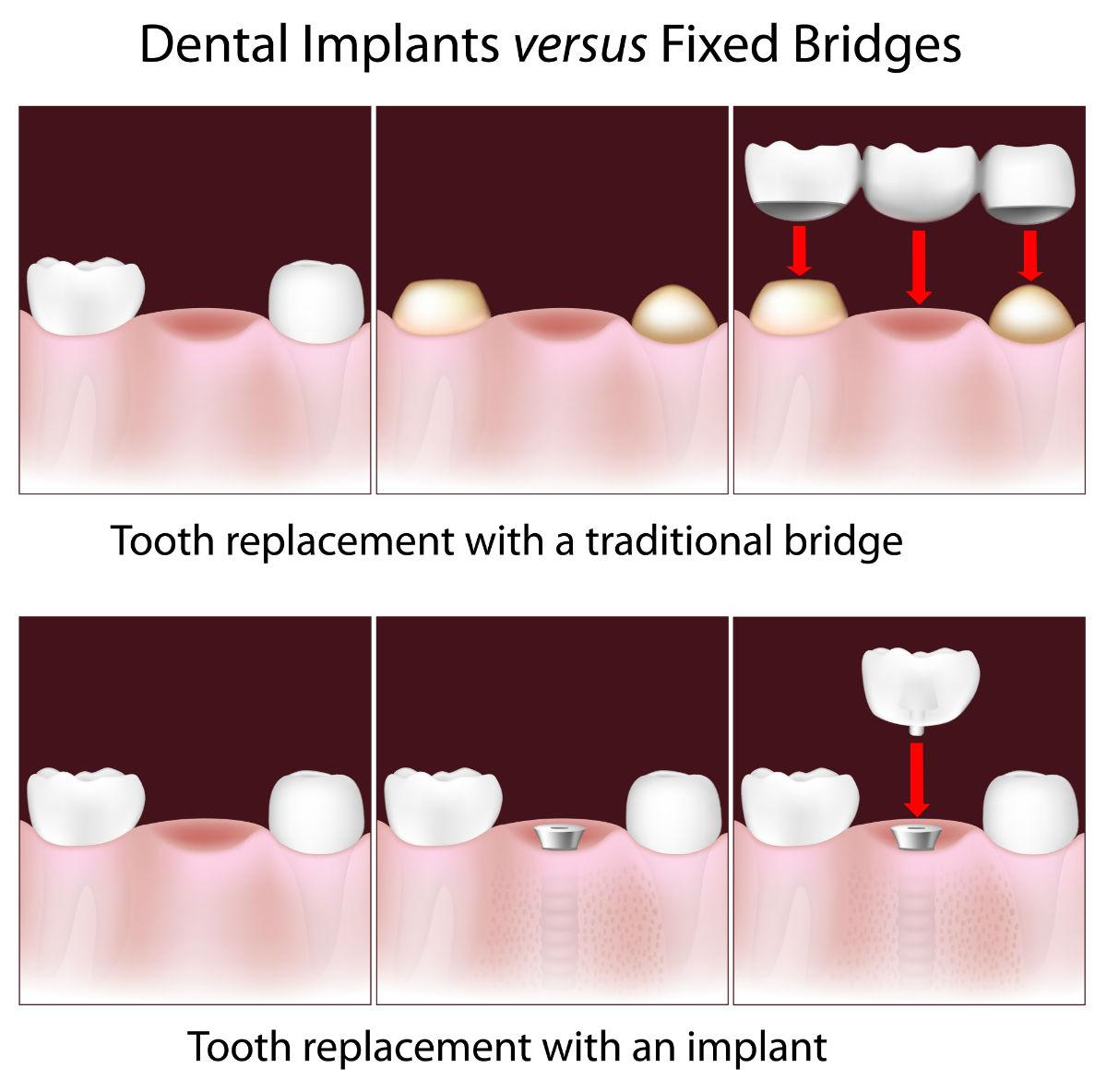 Dental Implants Or Bridges?