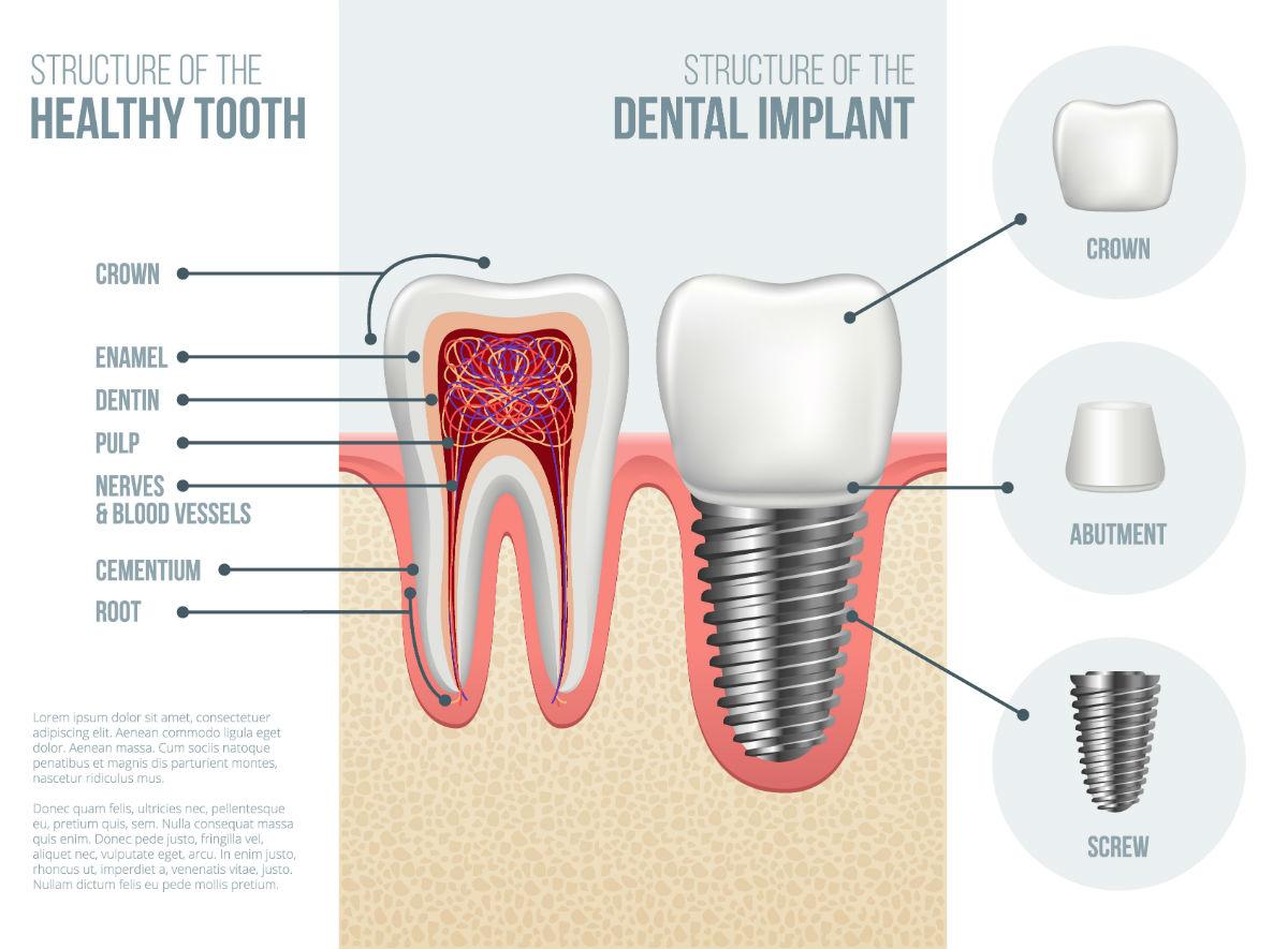 Dental Implants Billings MT | Bridge Creek Dental