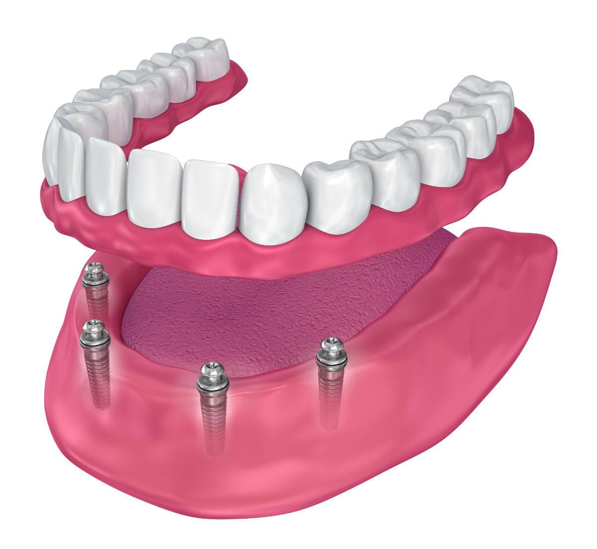 Dentures or Dental Implants