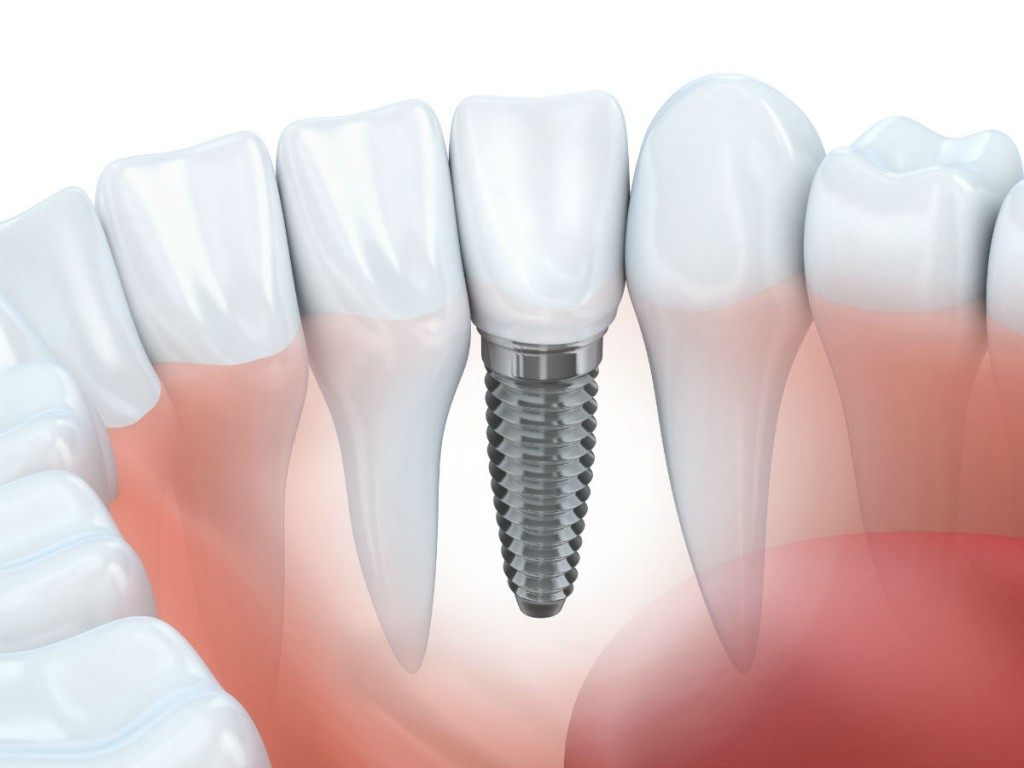 5 Things To Keep In Mind When Choosing A Dentist For Dental Implants