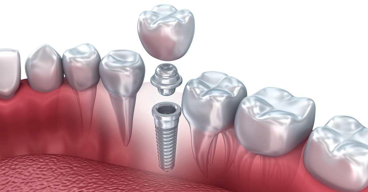 Dental Implants – Procedures and Expectations