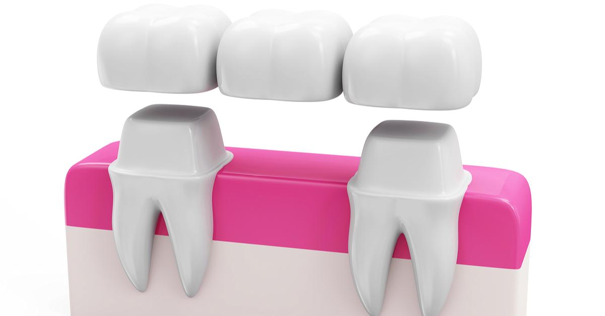 When Dental Bridges Are Needed