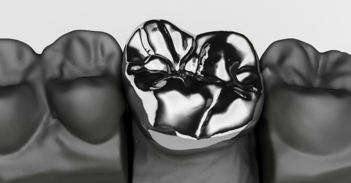 How Long Do Dental Bridges And Dental Crowns Last