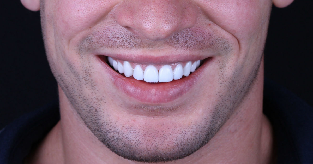 Billings Dentist Brings Veneers To Montana Residents