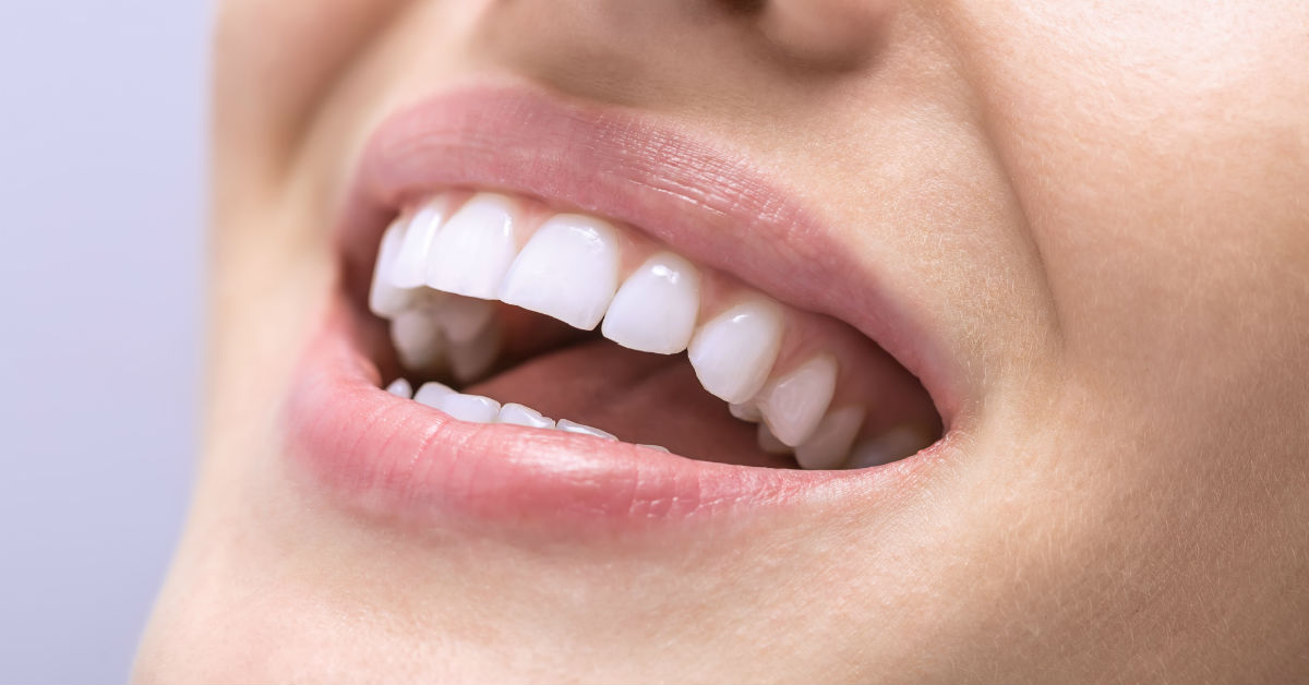 Cosmetic Dentistry Can Fix Crooked Teeth