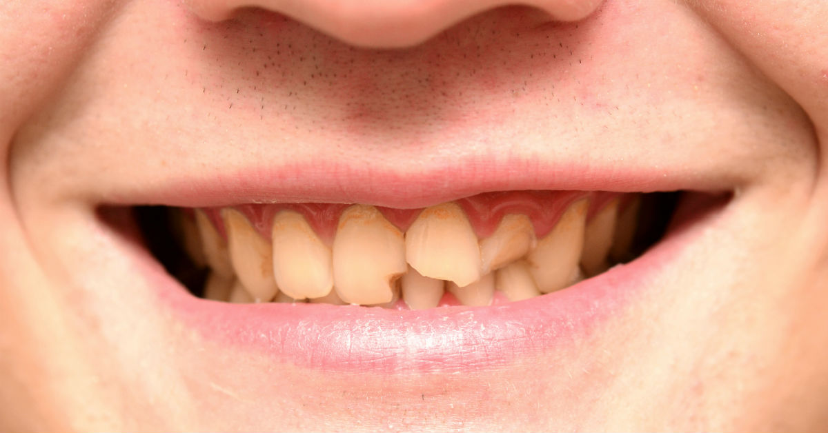 Broken Tooth Repair In Billings Montana