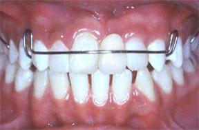 dentures05after (1)
