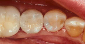 fillings-06-after