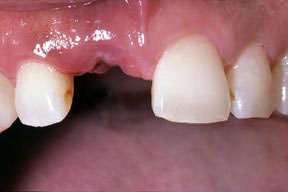 implant_00_before