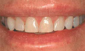 veneers_08_before