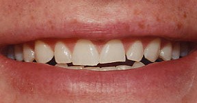 veneers_10_before