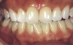 whitening_01_after