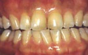 whitening_01_before