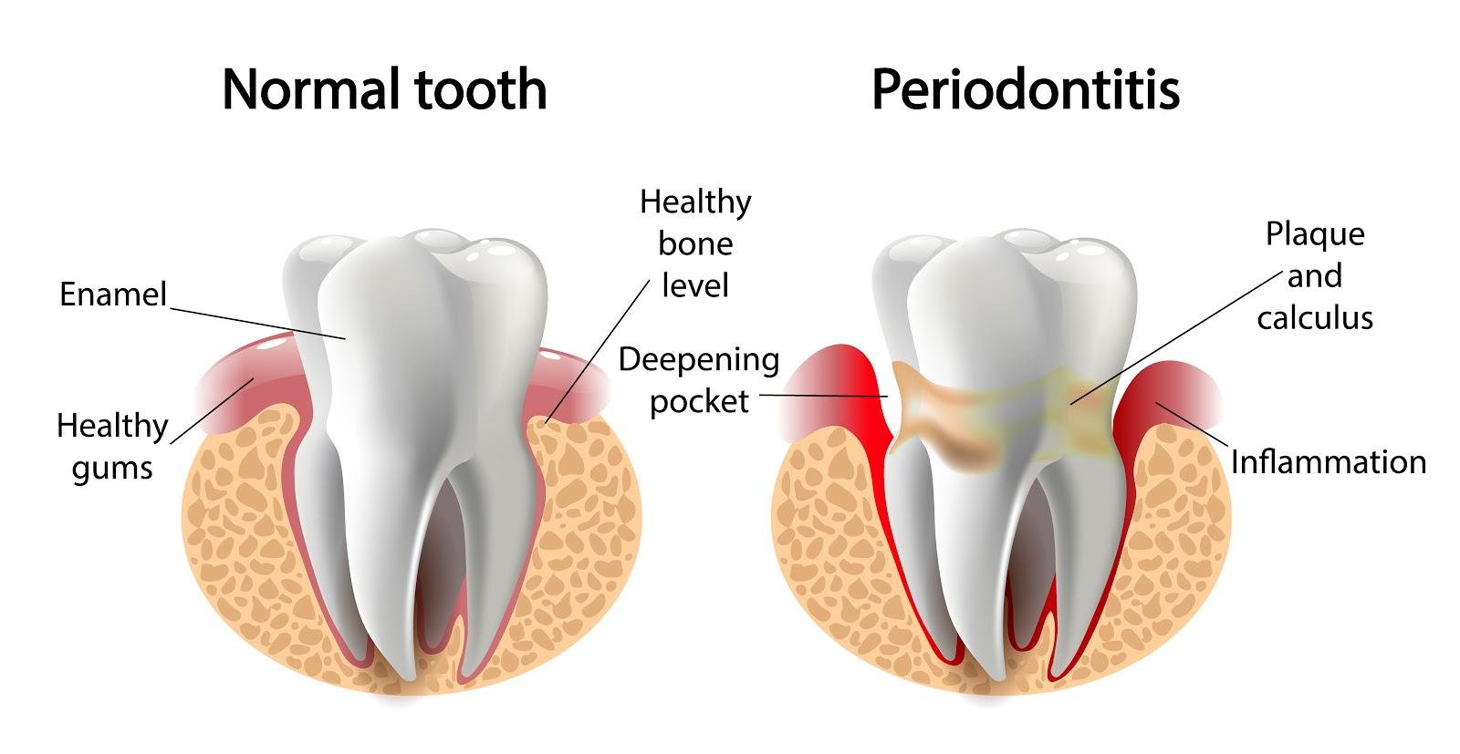 Peridodontal Gum Disease - Bridge Creek