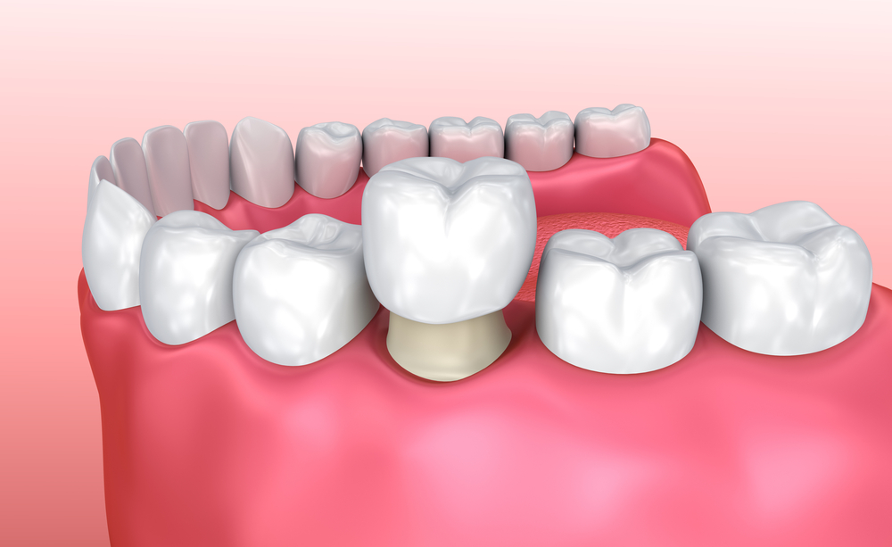Dental Crowns: Why You Want to Replace the Temporary Crown in a Timely Manner