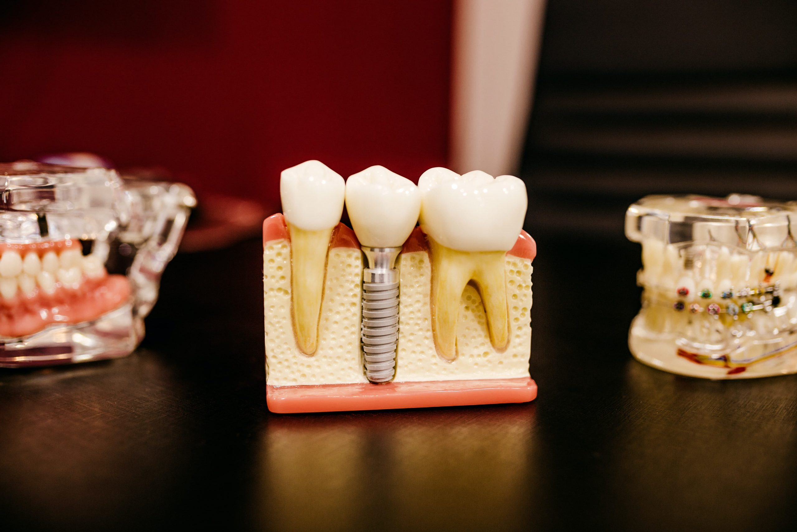 Dentist Digest Monthly: Crowns vs Tooth Implants